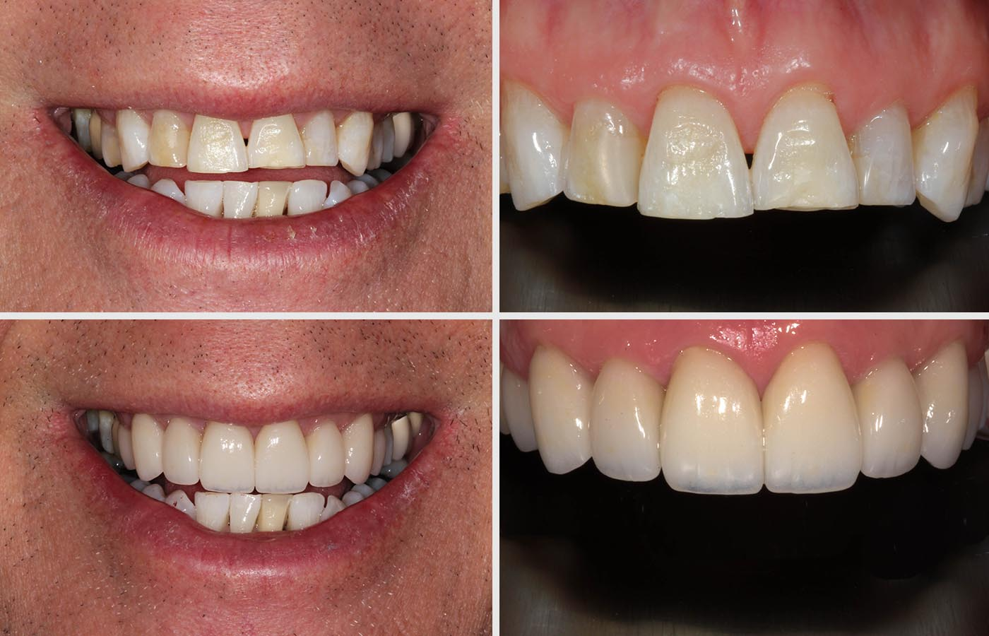 Veneers by Dental Elements in Leatherhead