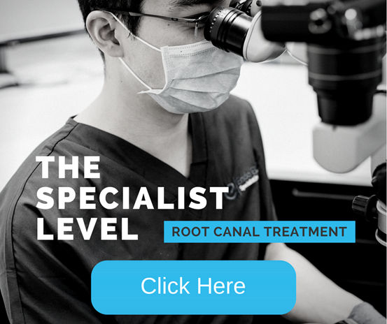 Root Canal Treatment - Dental Elements